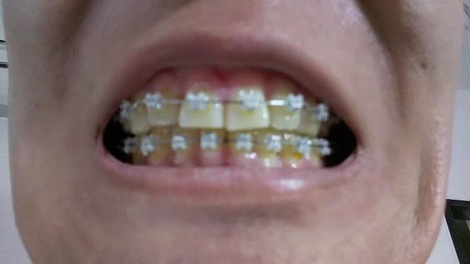 サラリーマンでもできる節税~矯正歯科で医療費控除を活用しよう